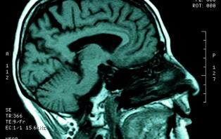 Sex, Lies And Brain Scans
