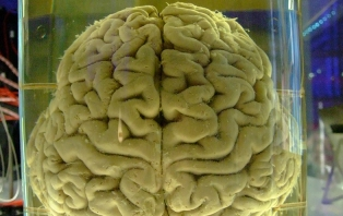 The Criminal Mind: Can You Blame Your Brain?