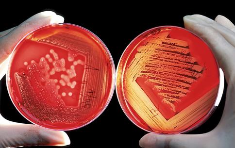 Predicting Pandemics
